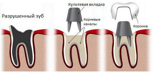Как удаляют корни от разрушенных зубов